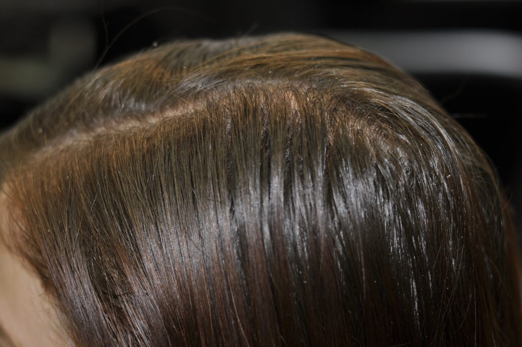 Oily scalp with slight dandruff, resulting in thinning hair