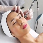 Facial detox treatment - Microdermabrasion