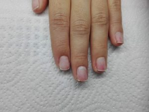 Thin and sensitive nails after shellac removal