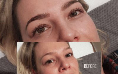 The Complete Guide to Lash Lift & Tint Treatment